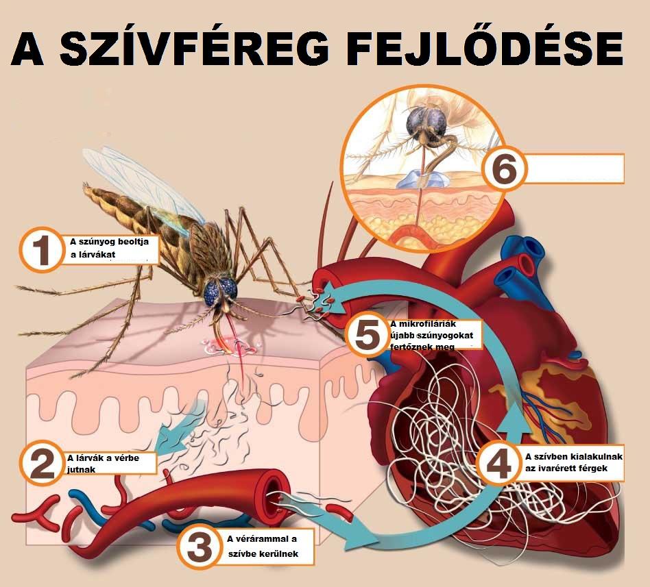 hogyan lehet megszabadulni az összes parazitától helminták az emberben