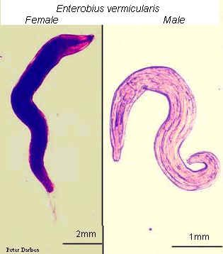 enterobiosis kód a férgek gyors gyógymódja