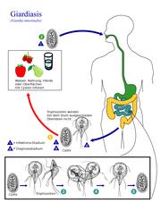 echinacea tinktúra szemölcsökre fórum a giardia kod pasa számára