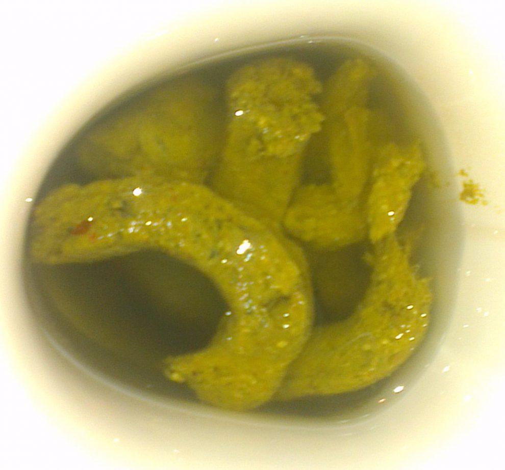 giardia symptoms yellow stool napos diéta méregtelenítés kiegészítők