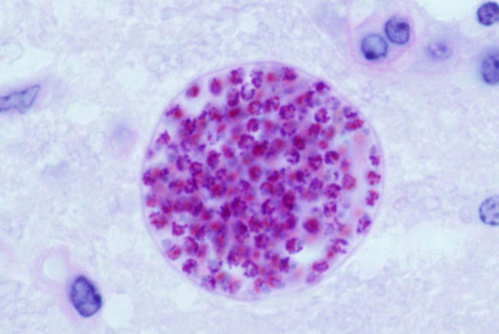 protozoaires paraziták de l homme férgek, mint eszköz a fogyáshoz