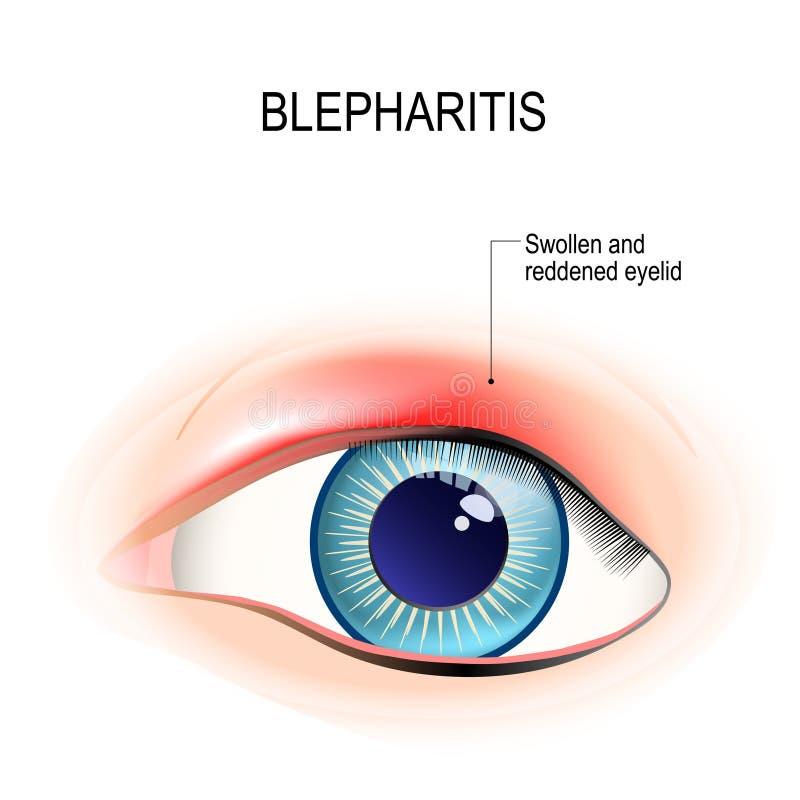 helminth inváziós blefaritisz