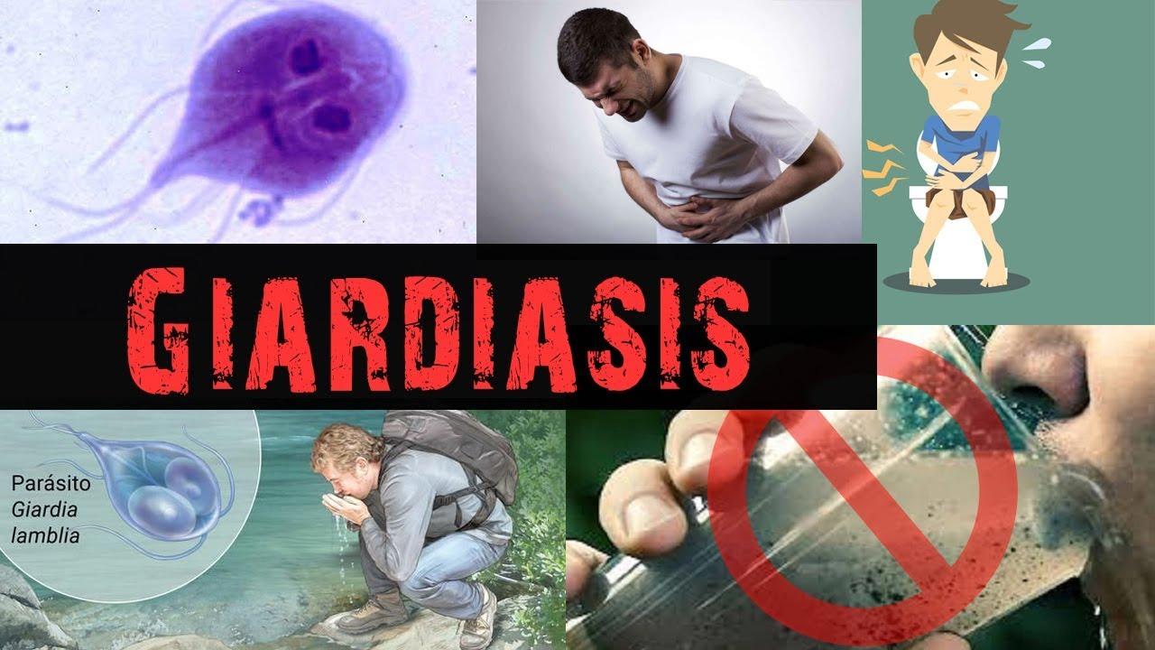 tratament naturist giardia duodenalis hogyan lehet egy gyermekből ürülékkenni?