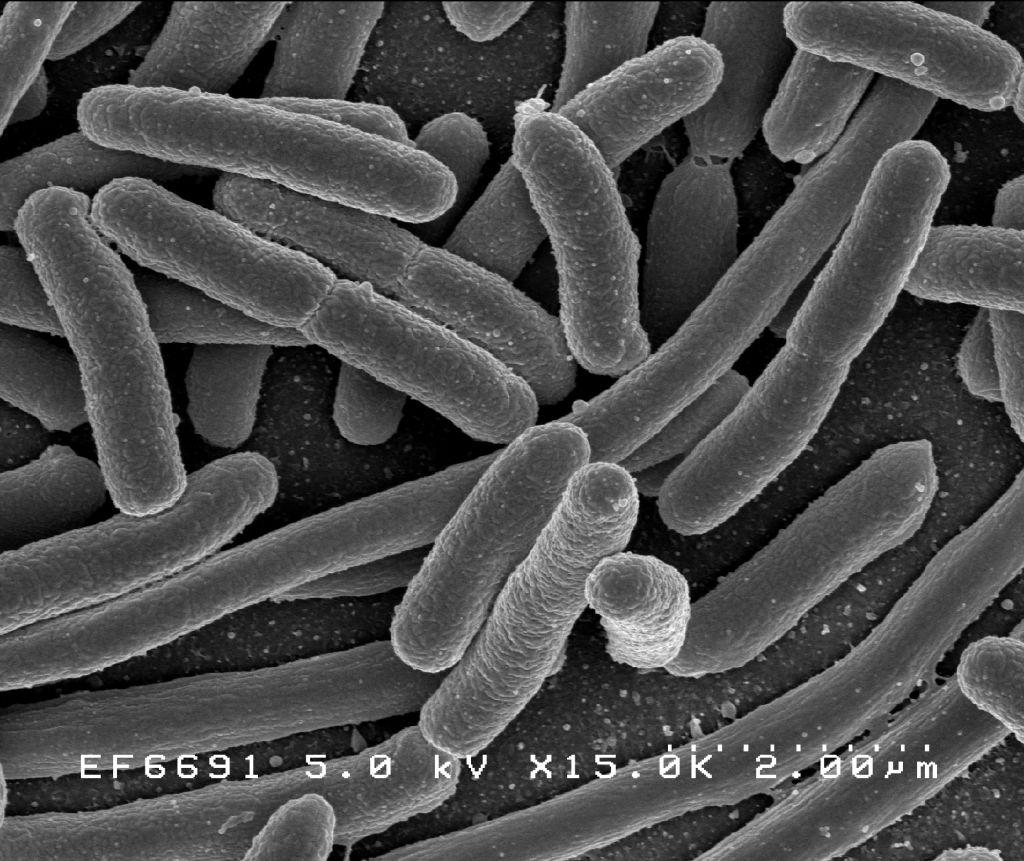 milyen parazitak elhetnek az emberi testben