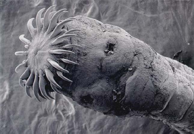 Parazita fertőzés – a rejtőzködő ellenség - Mandala egészségkuckó
