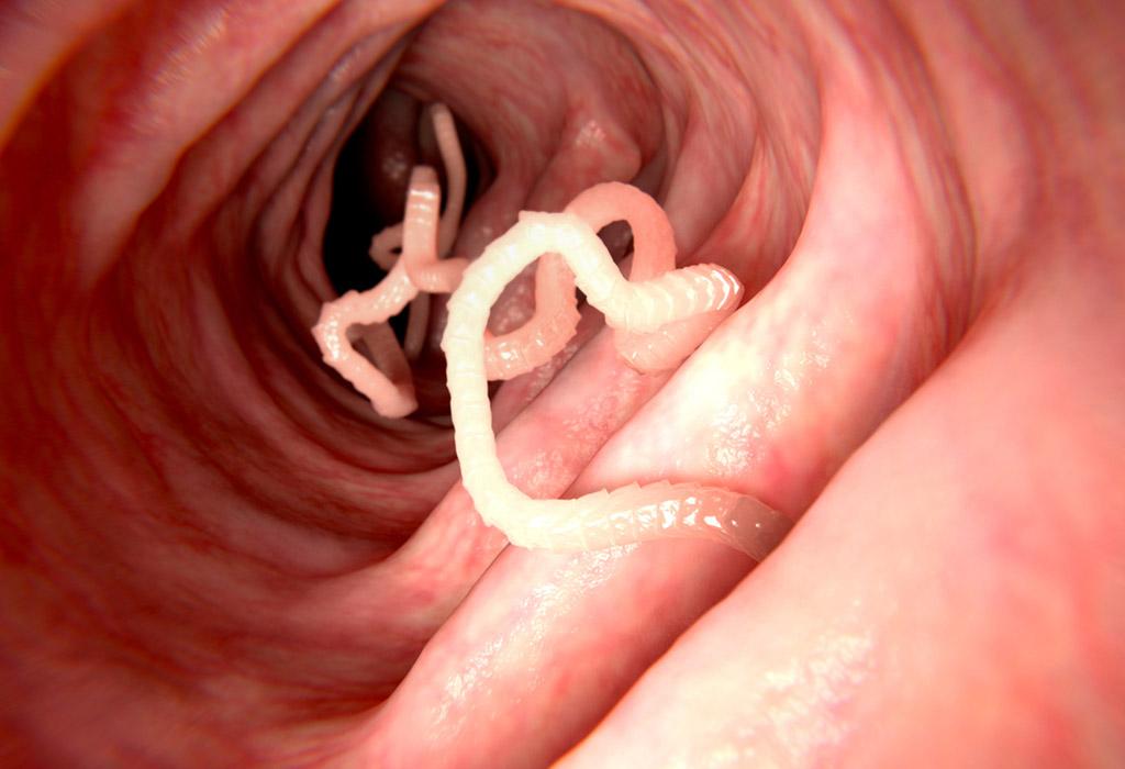 paraziták az élelmiszer- szennyeződésben hogyan kell kitölteni egy igazolást az enterobiosisról
