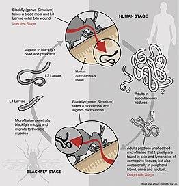 helminták emberi paraziták
