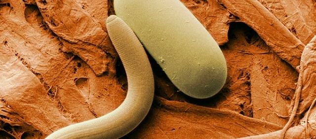a paraziták tisztításának tünetei