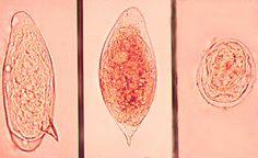 A férgek meg tudják szelídíteni az immunrendszert?