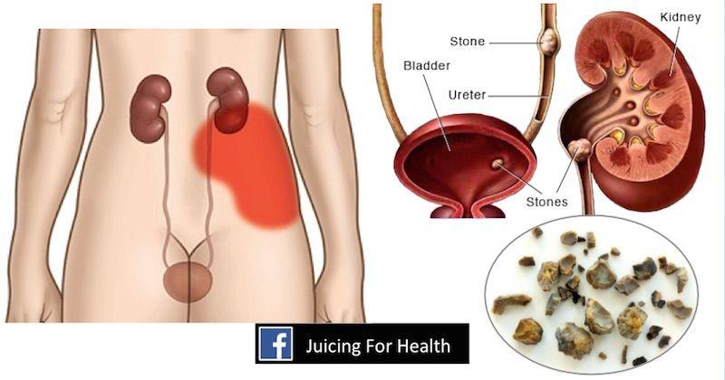 detox után colon hidroterápia