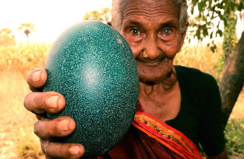 Mit néz ki a bélszín tojás az emberekben? - Hasnyálmirigy-gyulladás