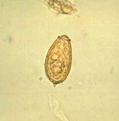 google schistosoma paraziták