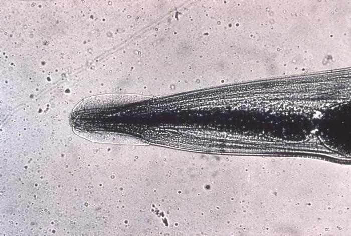 pinworm anthelmintikum cérnagiliszta elleni gyógyszer