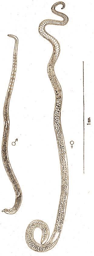 Index - Tudomány - Parazita falta fel a lány szemgolyóját