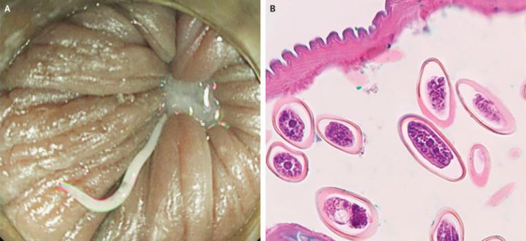 pinworms tojás fejlődése emberi férgek kezelésére szolgáló gyógyszerek áttekintése