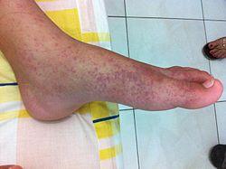 Helmint tabletták a megelőzéshez Diftillobothriasis fertőzés révén