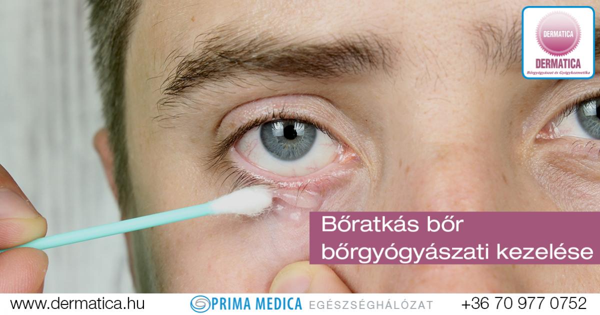 paraziták az emberi szemhéj kezelésében tabletták a férgek ellen