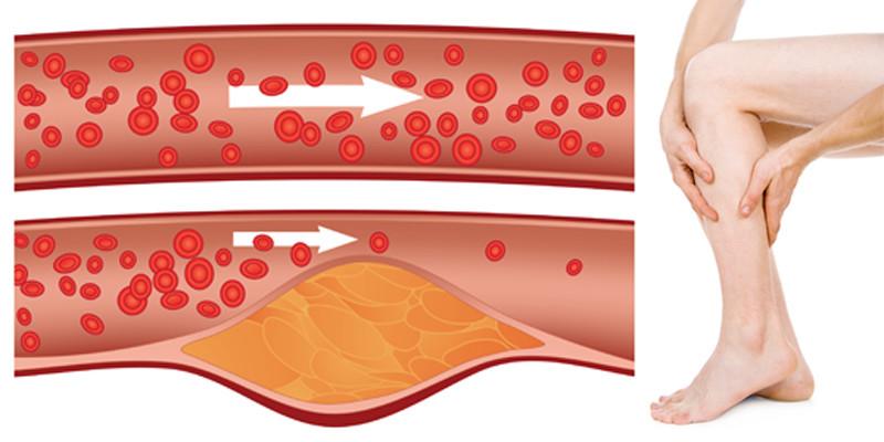 hogyan lehet kezelni az egyszerű férgeket giardia fenbendazole treatment