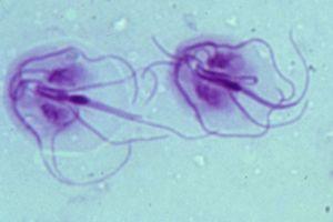 a gyermekek számára a pinworms legjobb gyógymódja a parazitak kivalasztasa a testbol