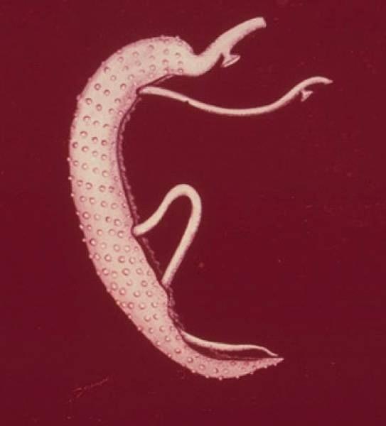 szarvasmarha szalagféreg tojás a székletben giardia colon cancer