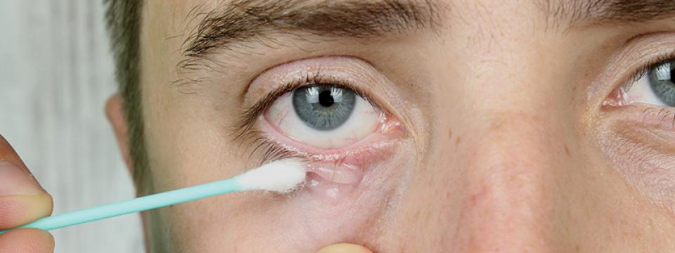 bőr paraziták hogyan kell kezelni