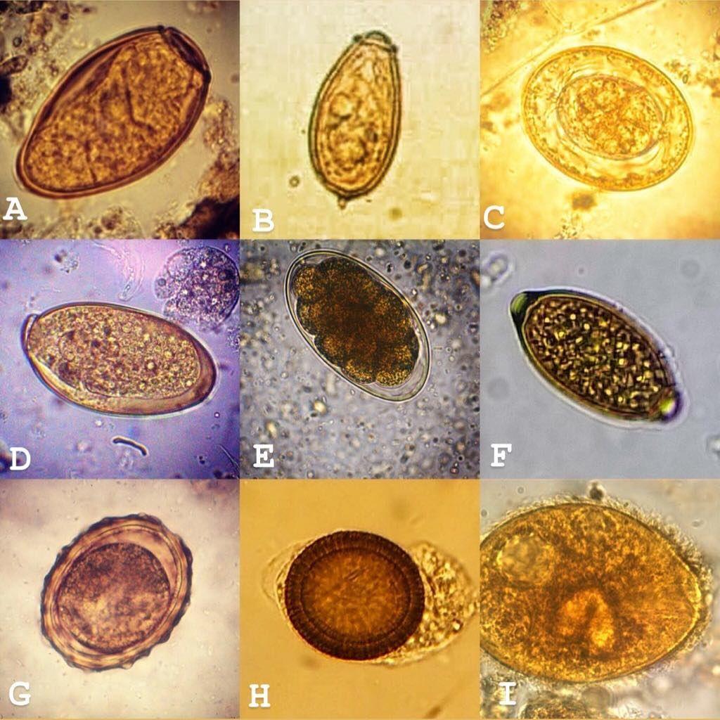 működtetett helminth tojások szalagféreg gyógyszerek kezelésre