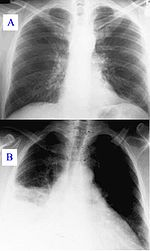 Gyógyszer a paraziták számára a tüdőben, Paraziták jelenléte a szervezetben