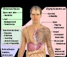 dipyllobothriasis opisthorchiasis féreg gyógymódok szoptatott felnőtteknél