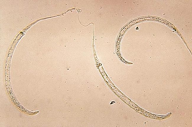 fonalféreg vizben