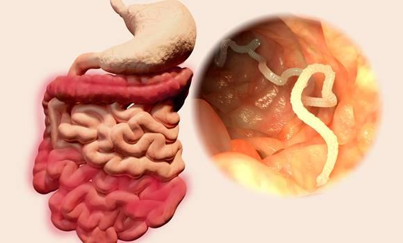 gyerek bélfergesseg tünetei pinworm tabletta tőlük