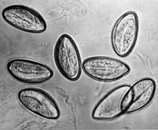 Pinworms: kezelés (gyógyszerek). Pinworm gyógyszert gyermekek számára