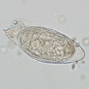 strongyloidosis tojások morfológiája