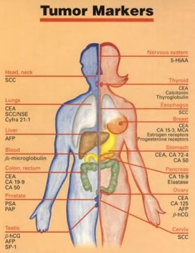 vakbél rosszindulatu daganata a paraziták elleni védekezés az emésztőrendszerben