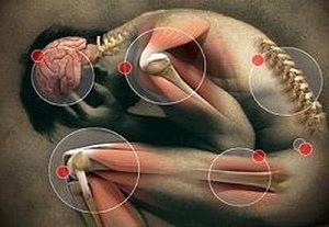 bélféreg tünetek gyermek tabletták után a férgek betegek