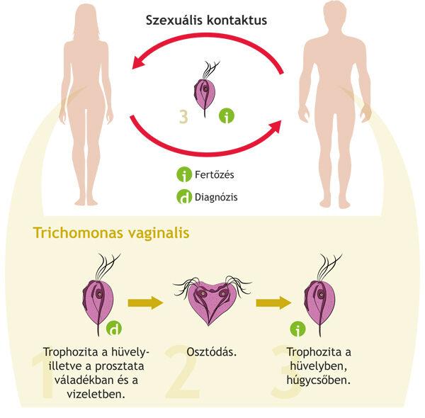 pinworm gyógyszer felnőtt tablettákban enterobiosis megnyilvánulások
