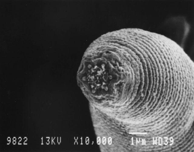 férgektől fertőzött férgek a tüdő tisztítása a parazitáktól