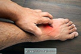 strongyloidosis fertőzés