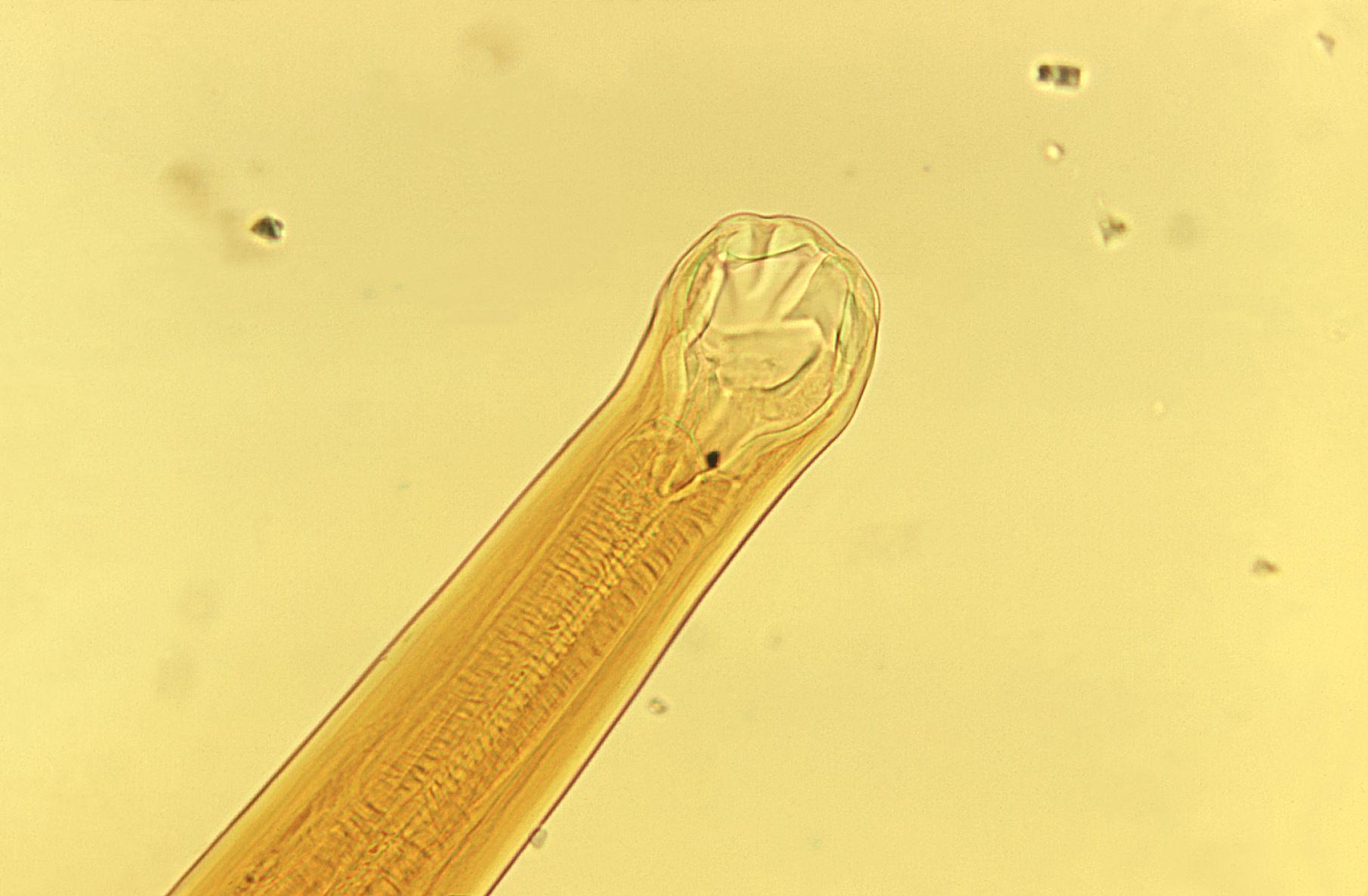 pinworm taxonómia giardia diet recovery