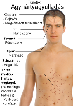 féreg orvosolja a tüneteket