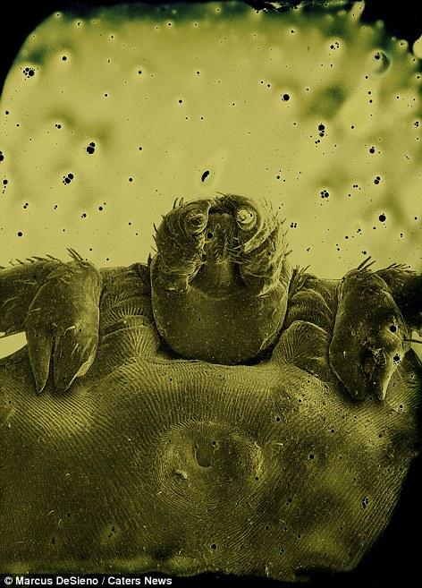 egy féregtől egy gyermek gyógyszeréig hogyan lehet megszabadulni a pinworm viszketésétől