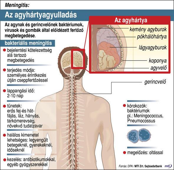 agyi paraziták kezelése az emberekben széklet gyermekekben férgekkel