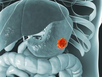 les parasites de l estomac