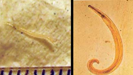 szalag paraziták az emberi test kezelésében